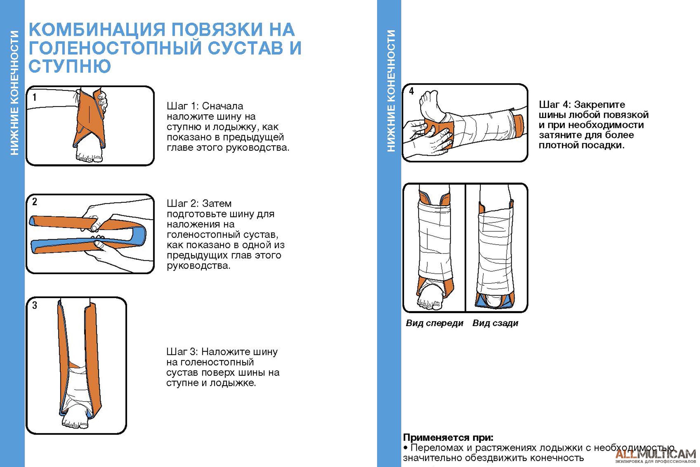 Комбинация повязки на голеностопный сустав и ступню