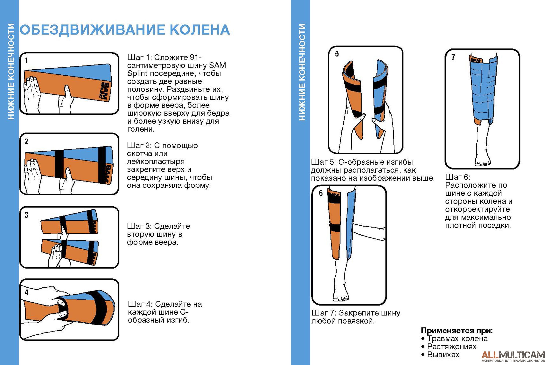 Обездвиживание колена