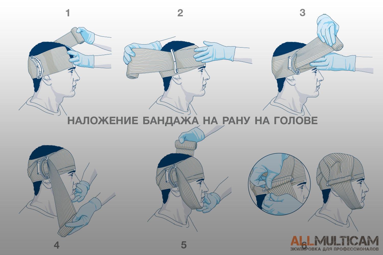 наложение повязки First Care на рану на голове