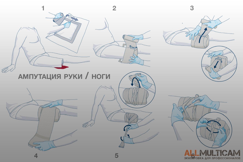 использование повязки First Care при ампутации конечности