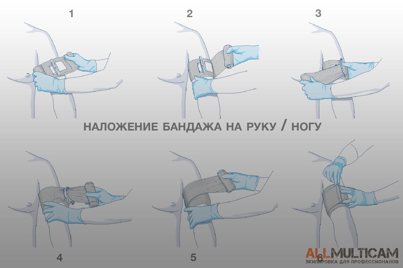 наложение бандажа на руку / ногу