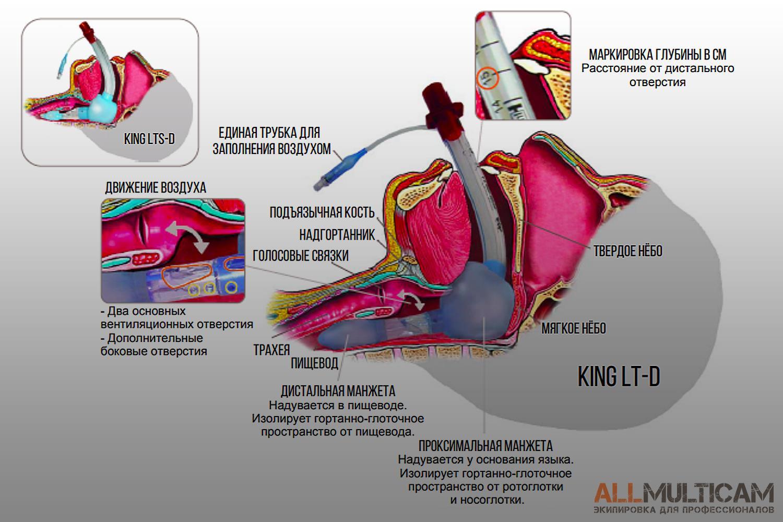 Устройство для дыхательных путей KING LT-D