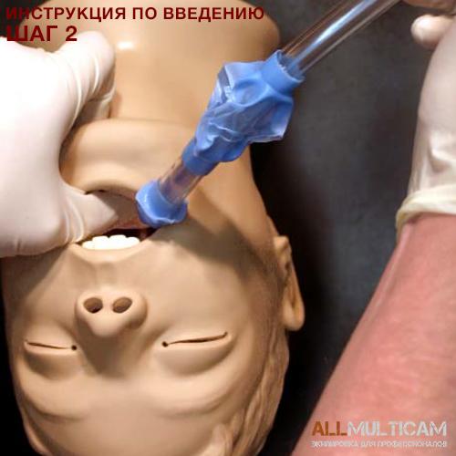 Устройство для дыхательных путей KING LT-D Инструкция шаг 2