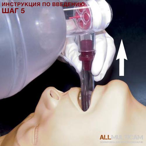 Устройство для дыхательных путей KING LT-D Инструкция шаг 5
