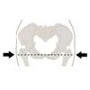 Тактическая медицинская повязка при переломе костей таза SAM Medical – фото 3